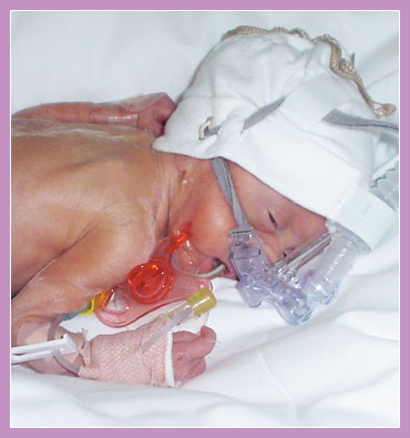 Photo of premature child in incubator with breathing aparatus.