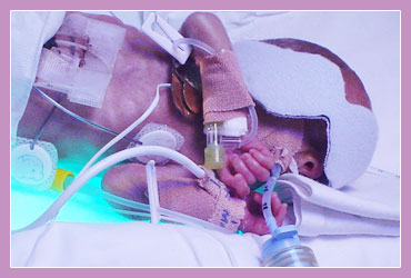 Photo of child experiencing Mechanical Ventilation