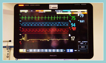 Photo of a Vital Signs Monitor