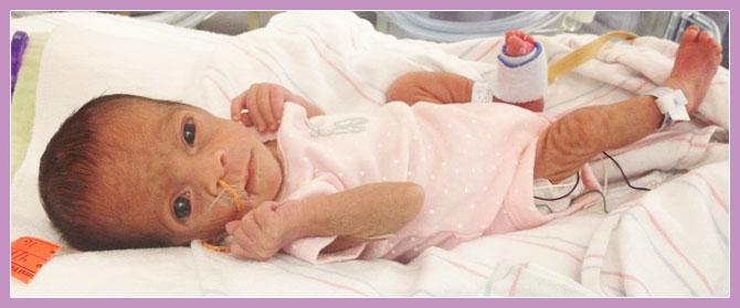 Photo of premature child depicting premature skin.