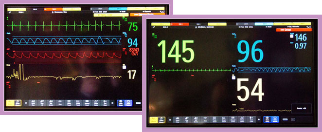 Collage of two photos showing Vital Signs Monitors and Heartbeat Monitor