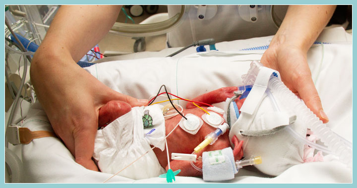 Photo of adult hands positioning a premature baby in an incubator.